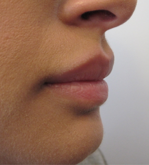 Lip Filler - Juvederm Volbella before 1305540