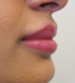 Lip Filler - Juvederm Volbella after 1305540