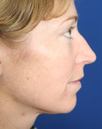 25-34 year old woman treated with Cheek Implants, Chin Implant, Nose Surgery and Fat Grafts before 1950056