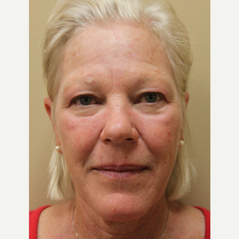 55-64 year old woman treated with Brow Lift & Upper Eyelid Surgery before 3704338