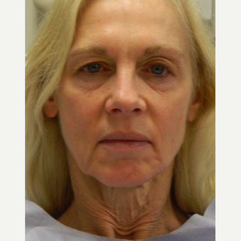 55-64 year old woman treated with Mini Lift, 4-Lid Blepharoplasty and Browlift