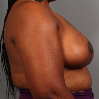 35-44 year old woman treated with Breast Reduction after 3495317