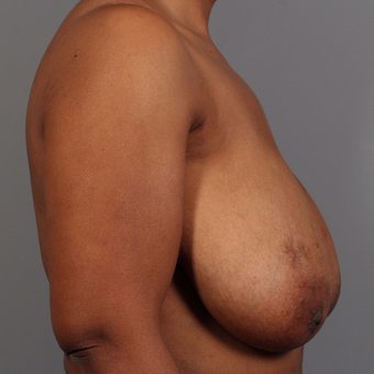 35-44 year old woman treated with Breast Reduction before 3495317