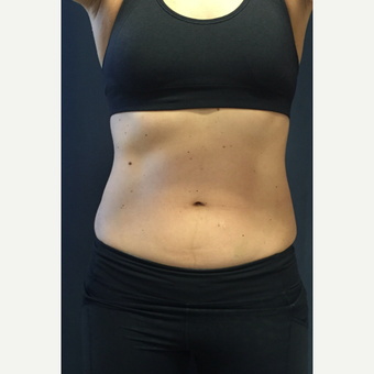 25-34 year old woman treated with SculpSure after 3168648