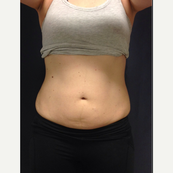 25-34 year old woman treated with SculpSure before 3168648