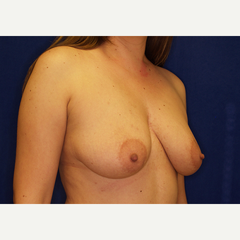 25-34 year old woman treated with Breast Lift with Implants before 3028016