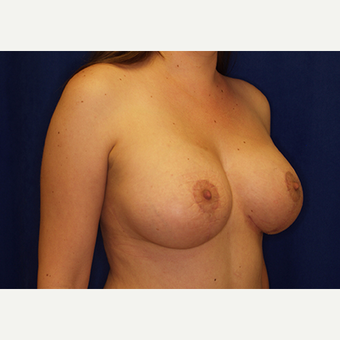 25-34 year old woman treated with Breast Lift with Implants after 3028016