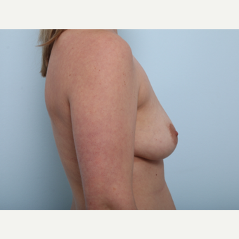 Breast Augmentation before 3508148
