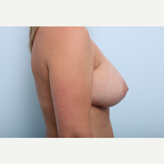 Breast Augmentation after 3508148