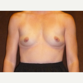 45-54 year old woman treated with Breast Reconstruction before 3041300