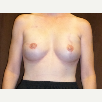 45-54 year old woman treated with Breast Reconstruction after 3041300
