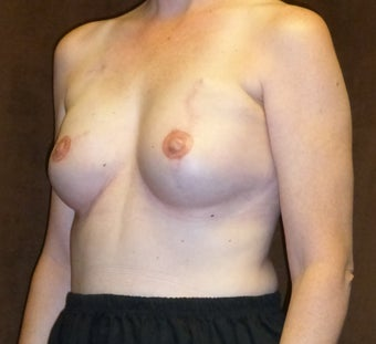 45-54 year old woman treated with Breast Reconstruction 3041300