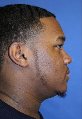 A young man with large underbite treated with Jaw Surgery (Orthognathic Surgery) 783712