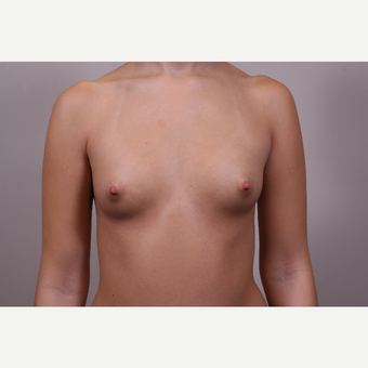 25-34 year old woman treated with Breast Augmentation before 3769315