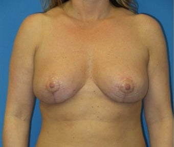 45-54 year old woman treated with Breast Reduction