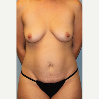 35-44 year old woman treated with Mommy Makeover before 3588570