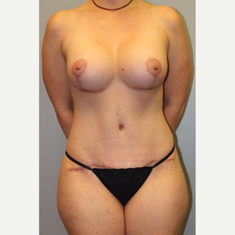 35-44 year old woman treated with Mommy Makeover after 3588570