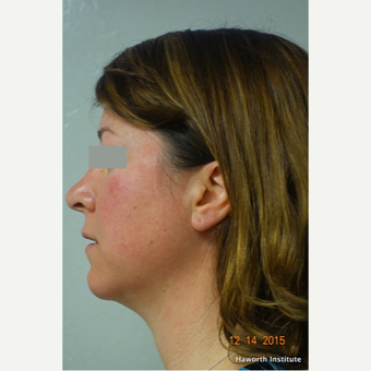 35-44 year old woman treated with Rhinoplasty before 3655636