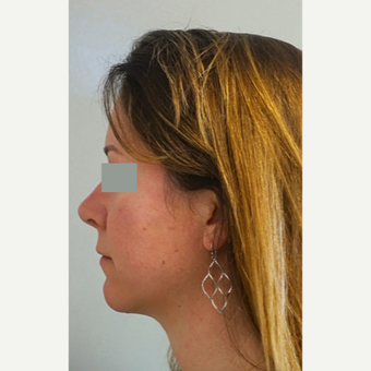 35-44 year old woman treated with Rhinoplasty after 3655636