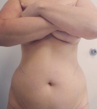 25-34 year old woman treated with Slim Lipo before 3496108