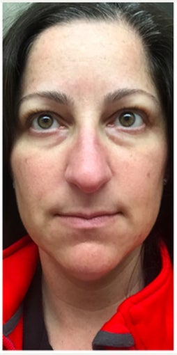 45-54 year old woman treated with Eye Bags Treatment