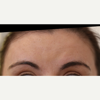 25-34 year old woman treated with Botox after 3807973