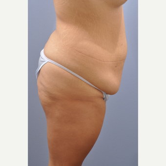 18-24 year old woman treated with Tummy Tuck before 3590452