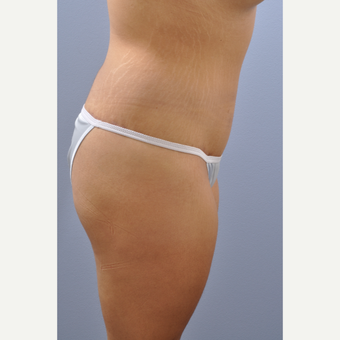18-24 year old woman treated with Tummy Tuck after 3590452