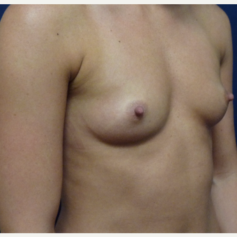 18-24 year old woman treated with Breast Augmentation before 3162357
