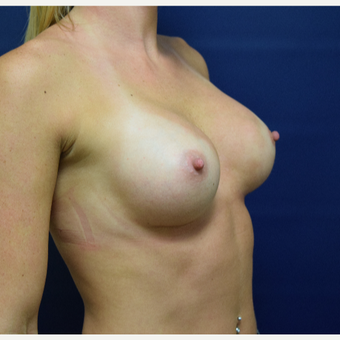 18-24 year old woman treated with Breast Augmentation after 3162357