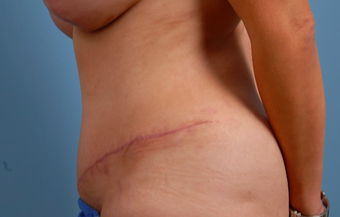 35-44 year old woman treated with Tummy Tuck after 2455974