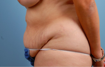 35-44 year old woman treated with Tummy Tuck before 2455974