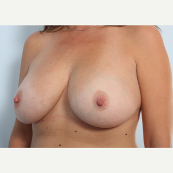 Breast Augmentation after 3460012