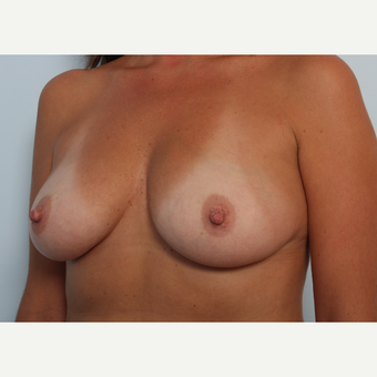 Breast Augmentation before 3460012