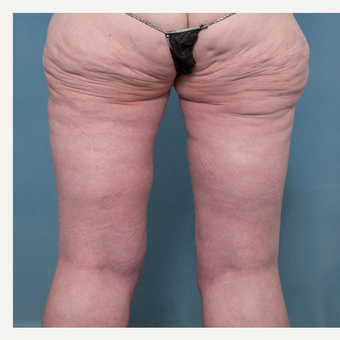 37 year old woman treated with Medial Thigh Lift after 3520455