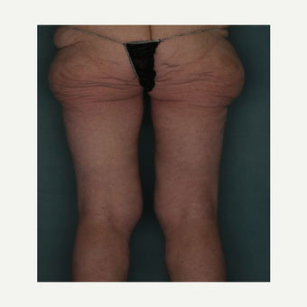 37 year old woman treated with Medial Thigh Lift before 3520455