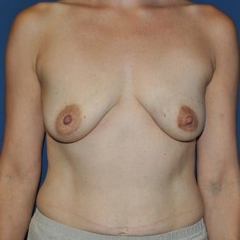 45-54 year old woman treated with Breast Reconstruction before 1593867