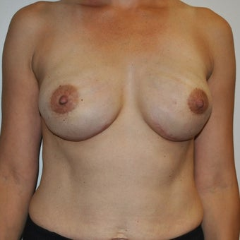 45-54 year old woman treated with Breast Reconstruction after 1593867