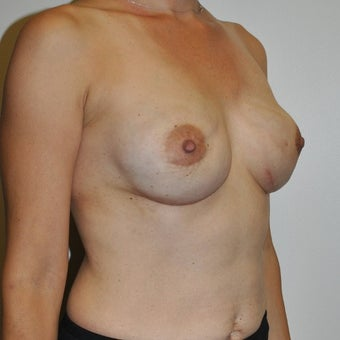 45-54 year old woman treated with Breast Reconstruction 1593867