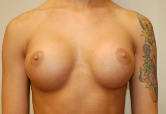 Breast Augmenation after 274552