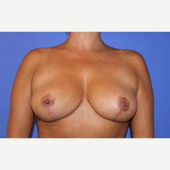 45-54 year old woman treated with Breast Lift after 3202171