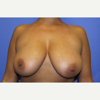 45-54 year old woman treated with Breast Lift before 3202171