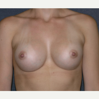 18-24 year old woman treated with Breast Implants after 3455650
