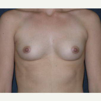 18-24 year old woman treated with Breast Implants before 3455650