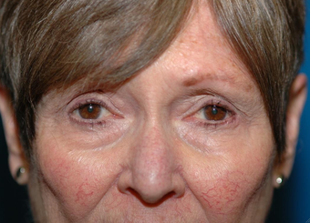 Mohs repair after excision of left lower eyelid skin cancer after 1051099