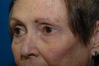 Mohs repair after excision of left lower eyelid skin cancer 1051099