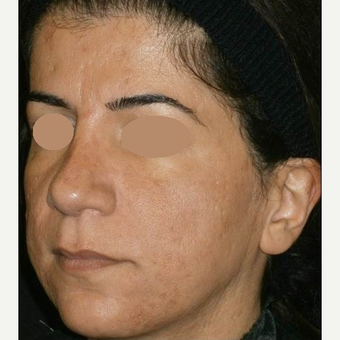 35-44 year old woman treated with ProFractional Laser after 3150286