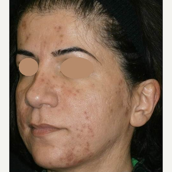 35-44 year old woman treated with ProFractional Laser before 3150286