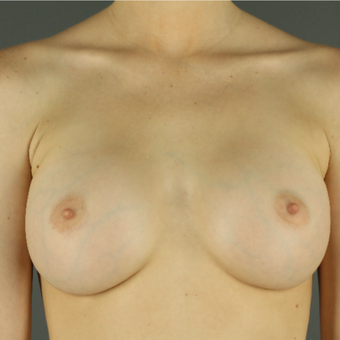 18-24 year old woman treated with Breast Augmentation after 3043199