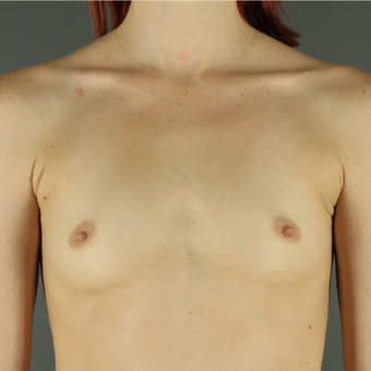 18-24 year old woman treated with Breast Augmentation before 3043199